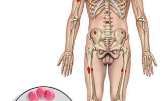 Ilustración hematología